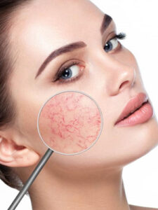 Venus IPL is used to treat capillaries on the neck and decolletage, as well as facial capillaries. It can be used in other body areas.