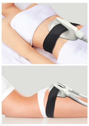 EMS or also known as EmSculpt is the only FDA-cleared technology to help build and sculpt muscles non-invasively, in just a few 30 minute sessions, for immediate and long-term body sculpting. EMS Body Sculpt also eliminates the fat cells creating the only 2-in-1 treatment for fat and muscle sculpting, with results being unparalleled in the industry.